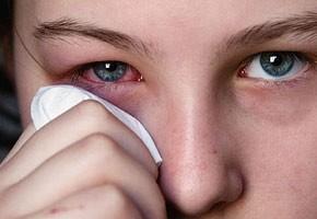 Краснуха: профилактика, симптомы и лечение