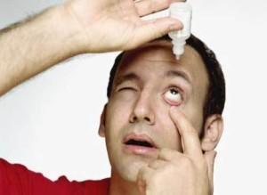 симптомы воспалительного заболевания век