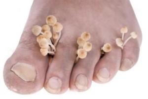Как лечить грибок золотым усом