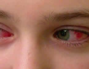 Воспалительные заболевания:как лечить мейбомит?