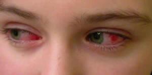 Воспалительные заболевания ч