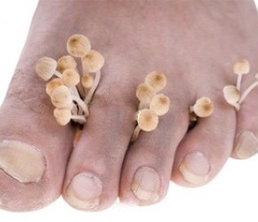 Как лечить грибок золотым усом?